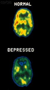 01 Jul 2007 --- Normal and depressed brain PET Scans --- Image by © ScienceVU/DOE,/Visuals Unlimited/Corbis