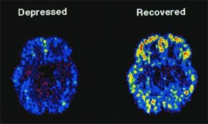 Dépression PET scan