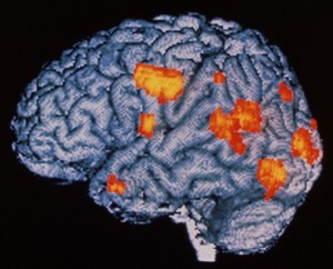 05 Jan 1996 --- Hallucination in schizophrenia. Coloured Positron Emission Tomography (PET) brain scan of a schizo- phrenic male patient aged 23 during hallucination. The left side of the brain is seen. Highlighted in orange are areas of brain activity. During hallu- cination the patient saw coloured heads which spoke to him. Visual (at right) & auditory (upper centre) areas of brain are active confirming the patient has 'seen and heard' an hallucination. Schizophrenia is characterised by deluded thought, hallucination and depression. Brain activity (orange) detected by PET scanning, has been super- imposed on a white MRI image of the human brain. --- Image by © WELLCOME DEPT. OF IMAGING NEUROSCIENCE/Science Photo Library/Corbis